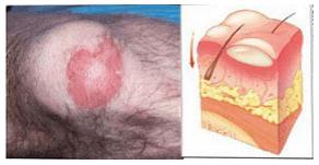 Luka Bakar Superficial Partial Thickness (luka bakar derajat IIa). Memucat dengan penekanan, biasanya berkeringat