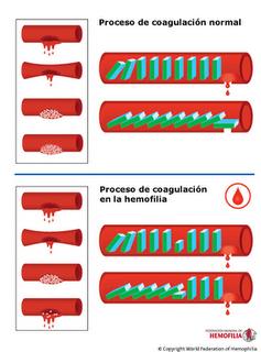 Mengapa Darah Penderita Hemofilia Sukar Membeku : mengapa, darah, penderita, hemofilia, sukar, membeku, Pondok