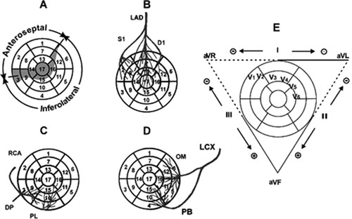 A New Terminology for Left Ventricular Walls and Location