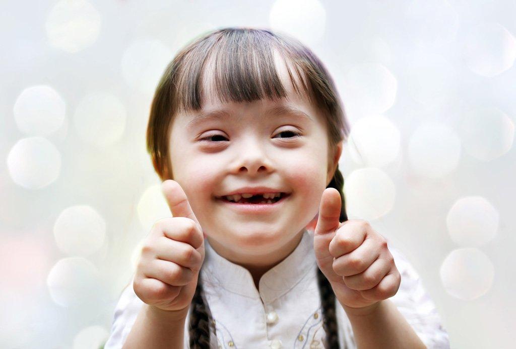 Día Mundial Del Síndrome De Down – 21 De Marzo