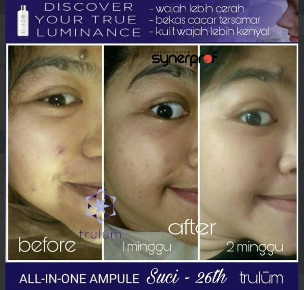 Jual Trulum Skincare di Indonesia Hub wa 0838 0505 5353