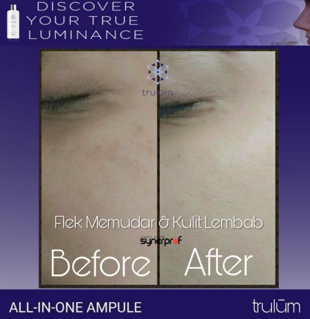 Jual Trulum Skincare di Kramatjati Hub wa 0838 0505 5353