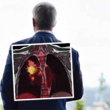 أعراض و مضاعفات سرطان الرئة