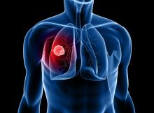 مقدمة عن سرطان الرئة