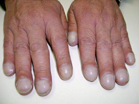 تضخم أطراف أصابع اليدين أو القدمين نتيجة اضطرابات الرئة