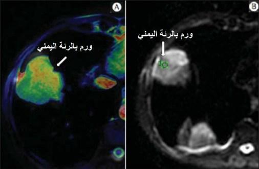 اشاعات الصدر المختلفة