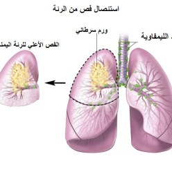 سرطان الرئة