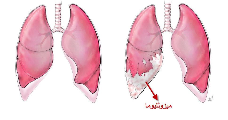 علاج ورم الميزوثليوما
