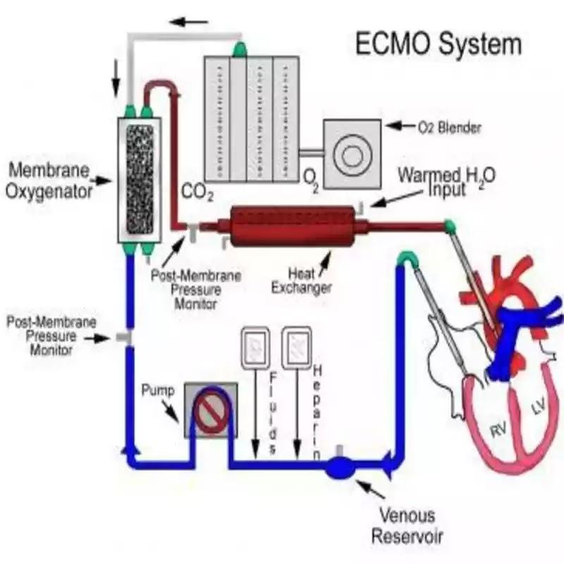ECMO – الايكمو
