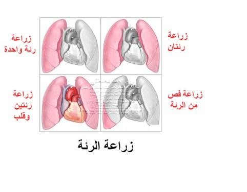 زرع الرئة