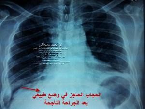 أمراض الحجاب الحاجز