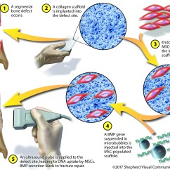 In Vivo Gene Therapy Diagram Fmea Boundary Example Bridging The Gap Regenerating Injured Bones With Stem