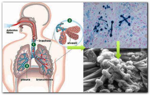 CIENCIA Y TÉCNICA: Asbesto o amianto, un elemento peligroso