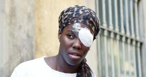 Daisy Osakue sufrió una lesión en el ojo.