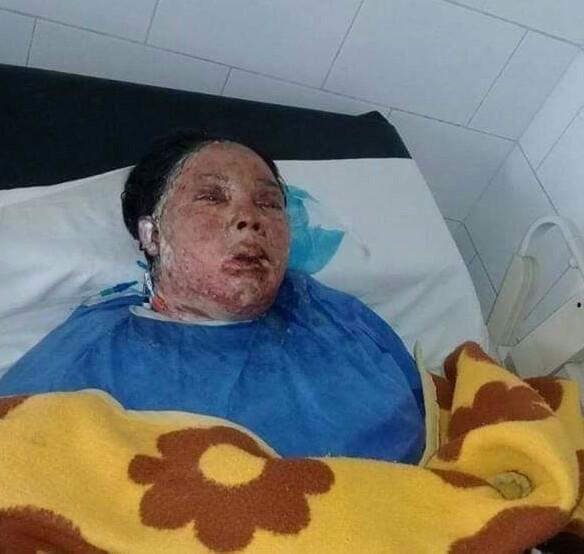 وفاة السيدة ايمان التي اشعل زوجها النيران بجسدها لرفضها العمل خادمةبالسويس