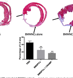 4 treatment with cramp preincubated bmmncs reduced scar size following ami mice [ 1242 x 904 Pixel ]