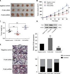 fig 6 flna suppressed growth of bc cell and metastasis of bc cells in vivo [ 1182 x 1238 Pixel ]