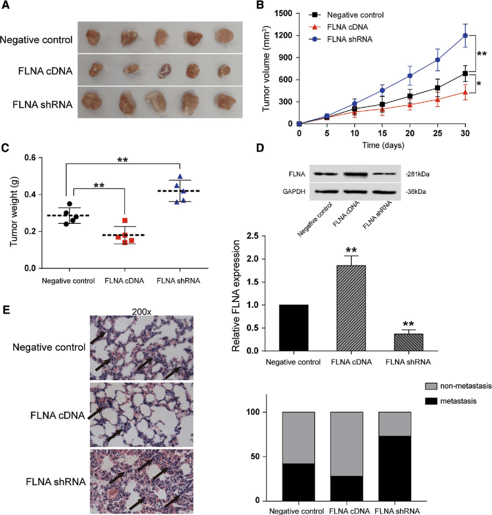 medium resolution of fig 6 flna suppressed growth of bc cell and metastasis of bc cells in vivo