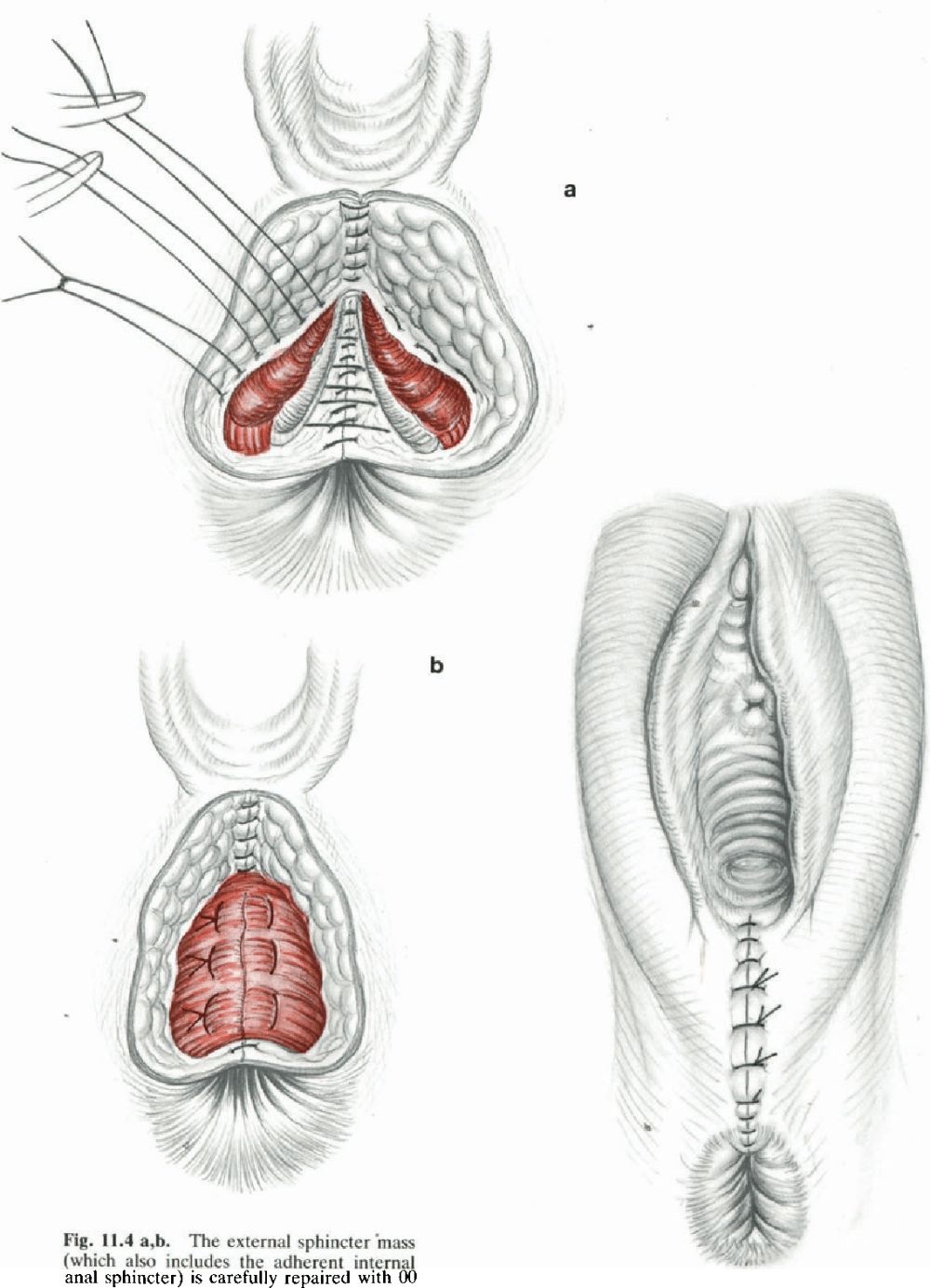 medium resolution of figure 3 19 from surgical treatment of anal incontinence semantic scholar