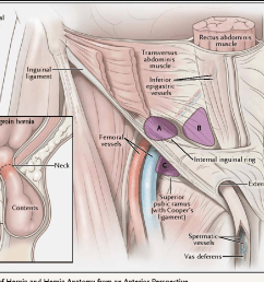 types of hernia and hernia anatomy from an anterior perspective  [ 1126 x 834 Pixel ]