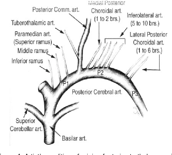 Figure 1 from Vascular syndromes of the thalamus