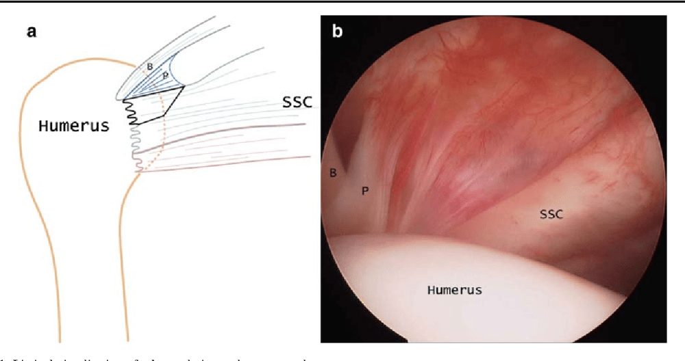 medium resolution of 21 limited visualization of subscapularis attachment on arthroscopy a illustration of the anterior