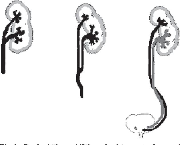 Figure 2 from Bilateral triple renal pelvis : A case