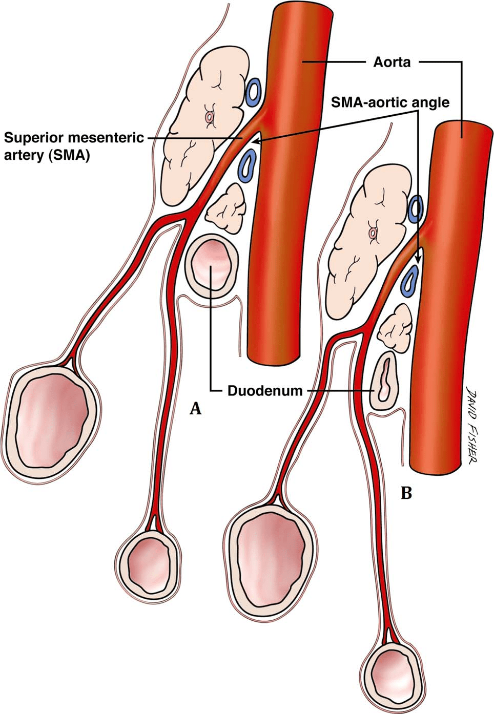 medium resolution of schematic diagram showing the origin of sma from the aorta note