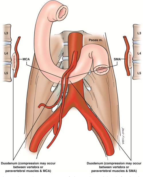 small resolution of schematic diagram showing compression of the 3rd part of duodenum between the