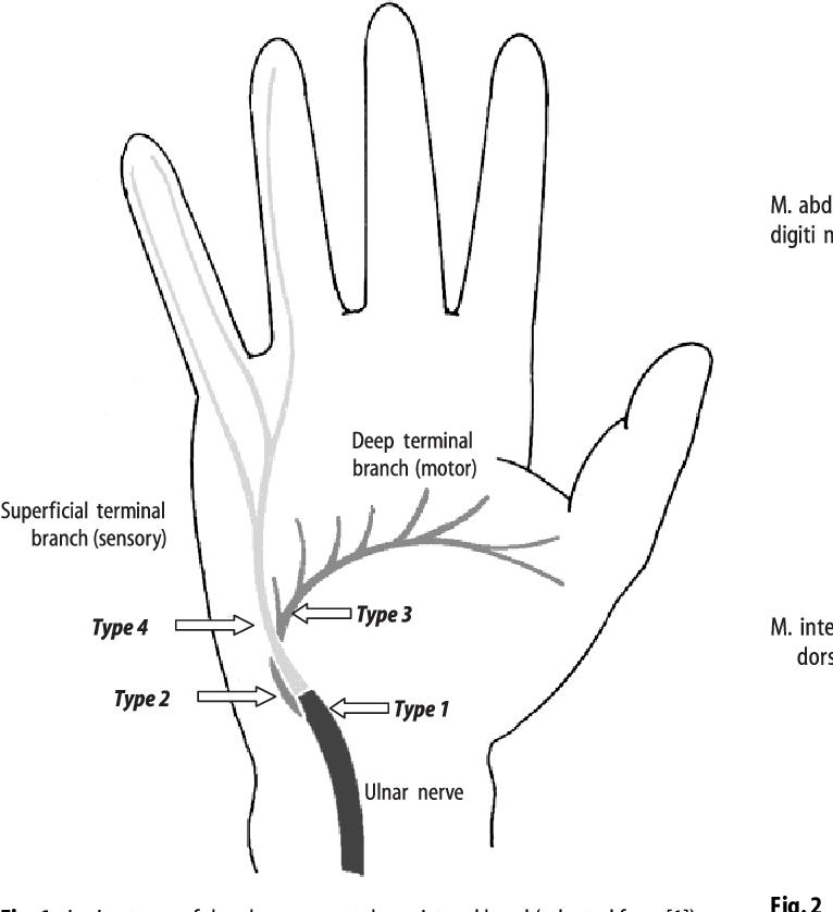 Figure 1 from Handlebar palsy