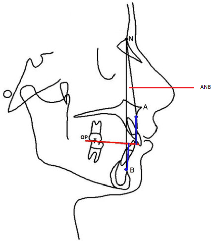 Figure 1 from An Evaluation of the Constructed Frankfort