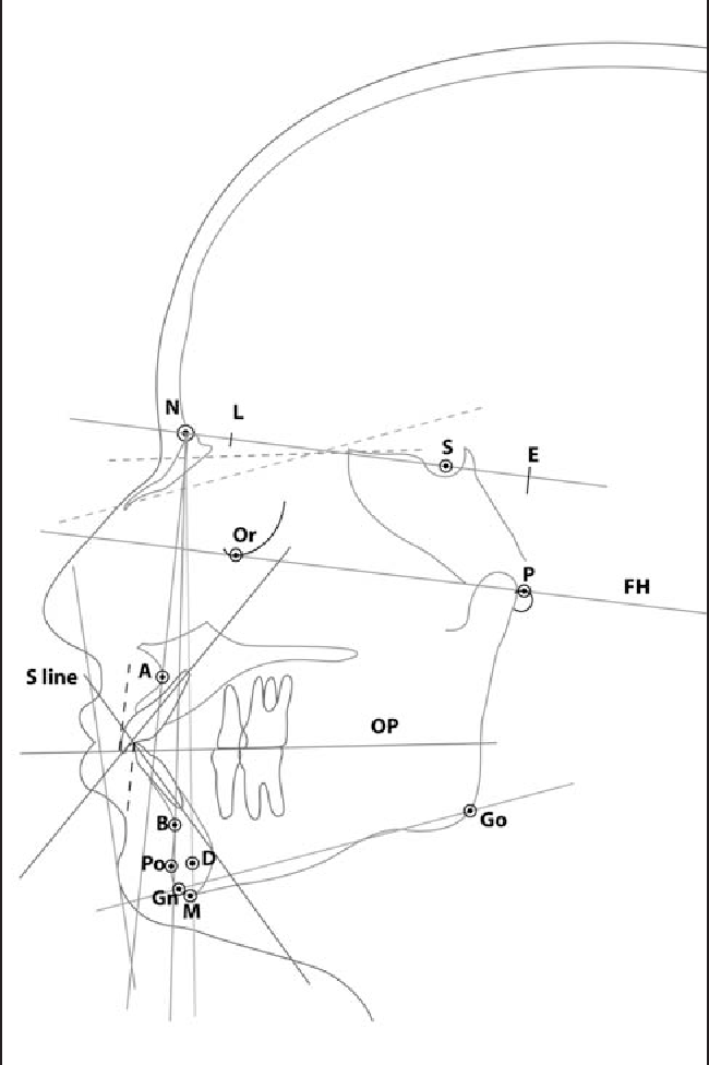 Figure 1 from Cephalometric norms of young adults of