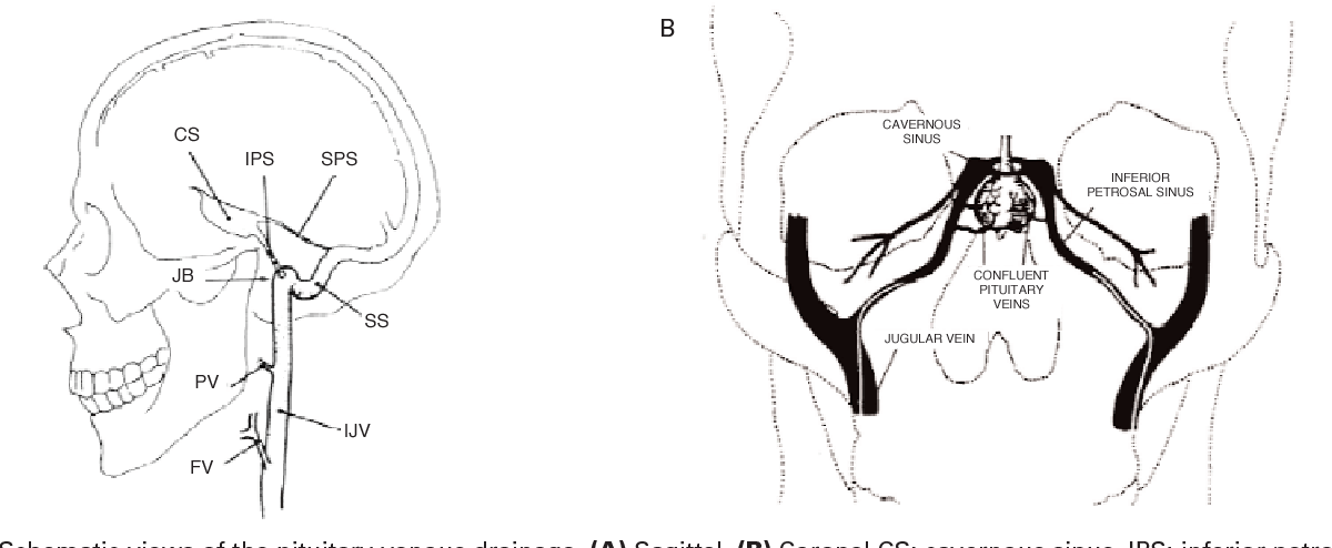 Figure 2 from The role of bilateral inferior petrosal