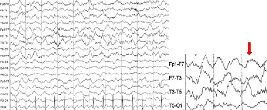 Figure 2 from Autoimmune Encephalitis: An update