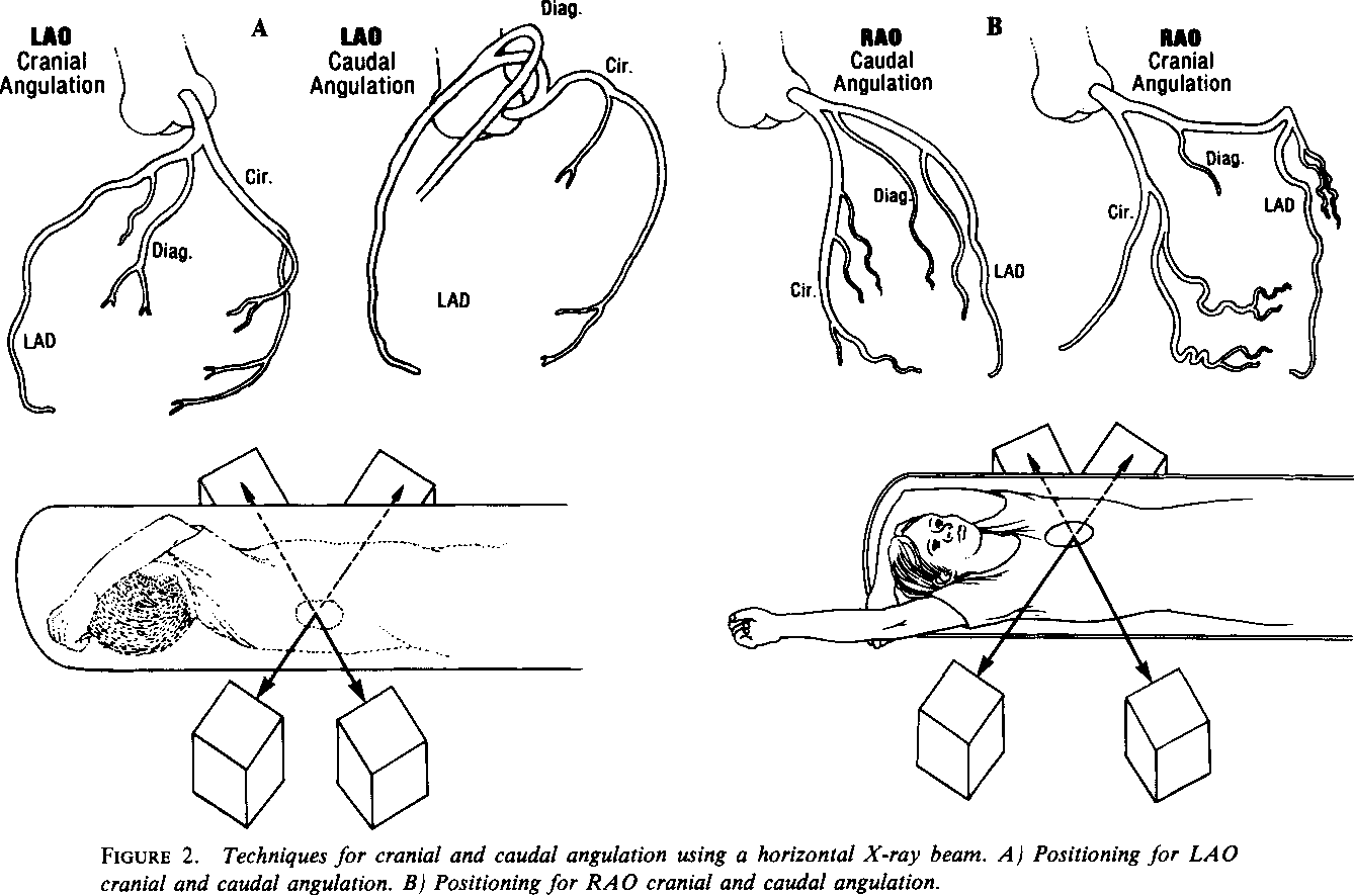 Figure 2 From Cranial And Caudal Augulation For Coronary