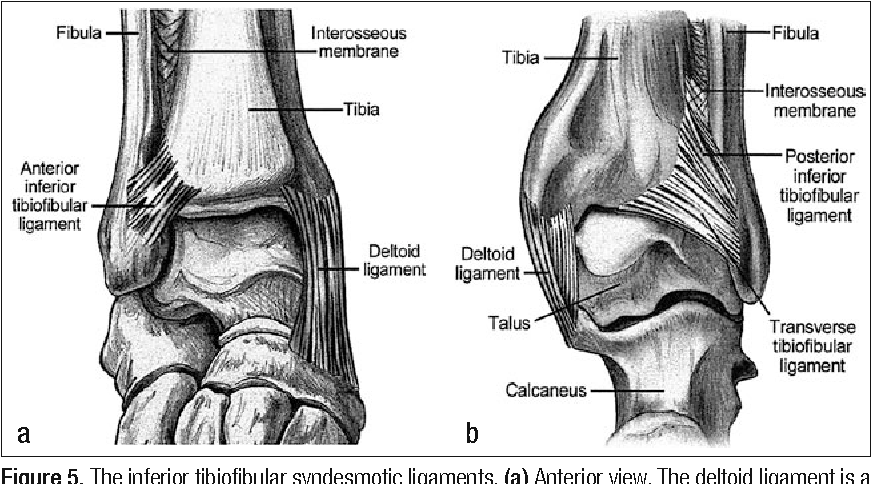 Figure 5 from Radiological evaluation of a high ankle