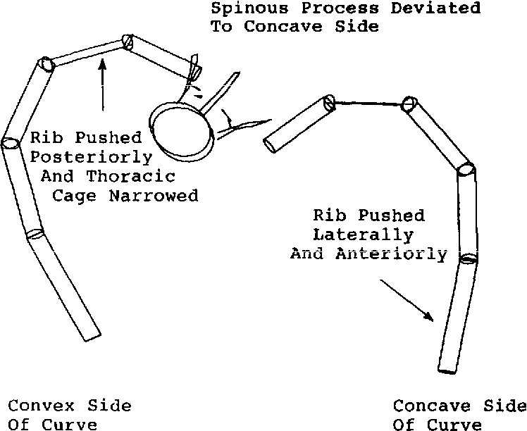 Figure 9 from A model for studies of the deformable rib