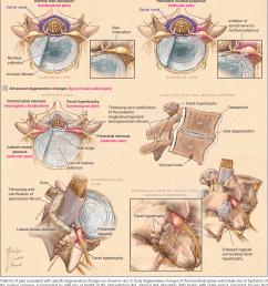 progressive degenerative changes of the functional spinal unit l4 5  [ 1366 x 1638 Pixel ]
