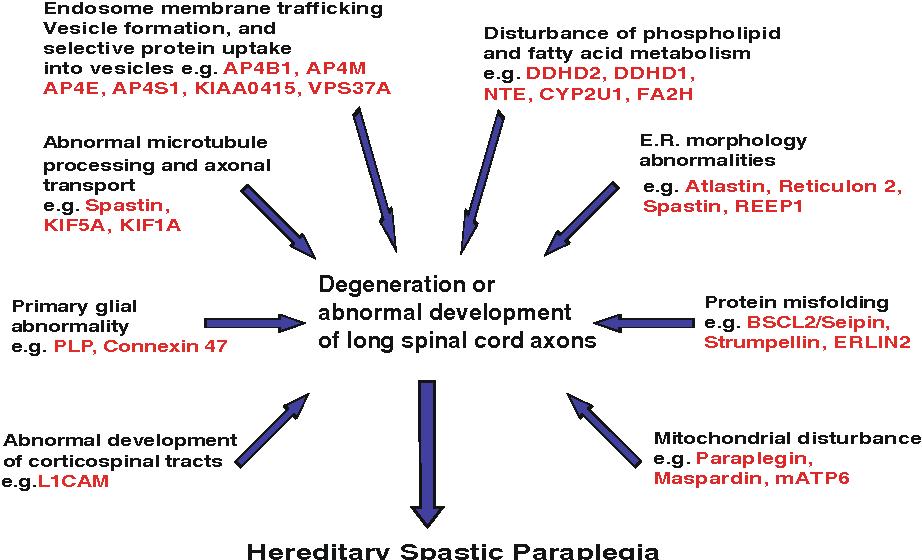 Image result for hereditary spastic paraplegia