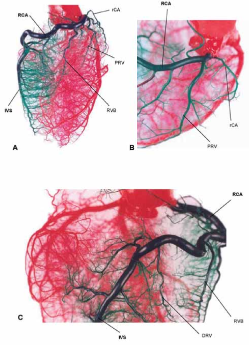small resolution of fig 10 corrosion casts of coronary arteries in pig a cranial