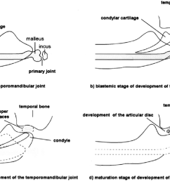 stages of embryonic development of the temporomandibular joint schematic diagram  [ 1288 x 796 Pixel ]