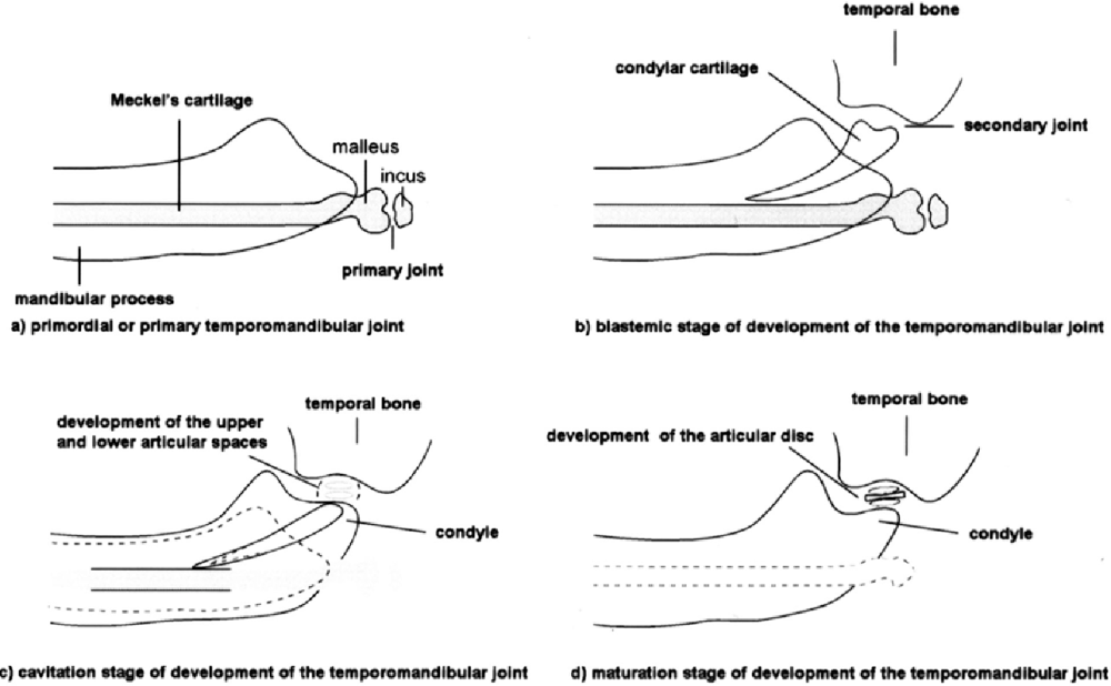 medium resolution of stages of embryonic development of the temporomandibular joint schematic diagram