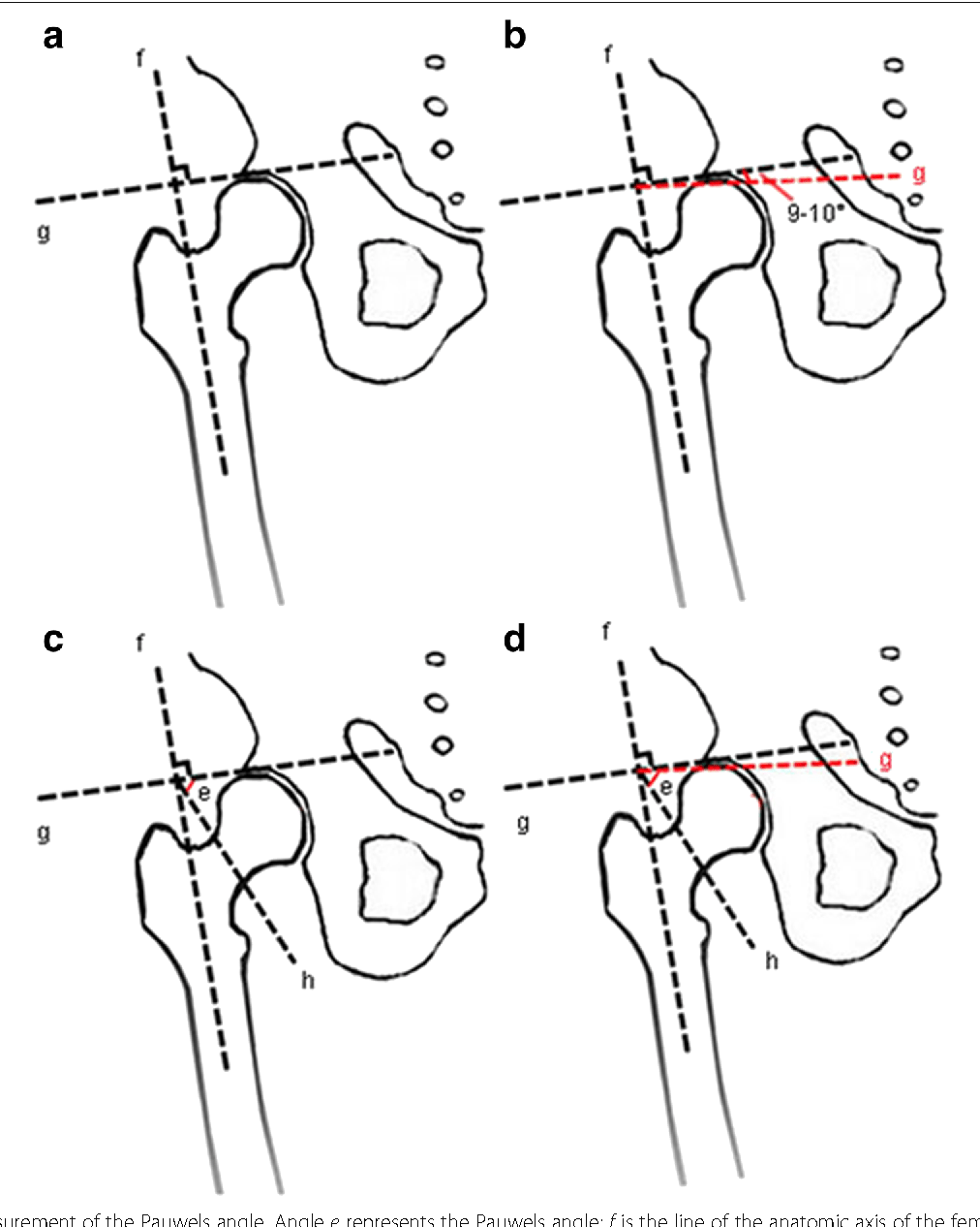 Figure 2 from An update on the Pauwels classification