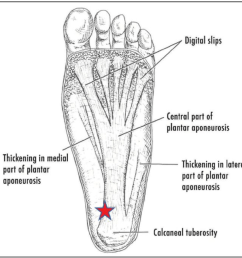 figure 1 plantar fascia diagram the plantar fascia runs from the calcaneal tuberosity to [ 922 x 910 Pixel ]