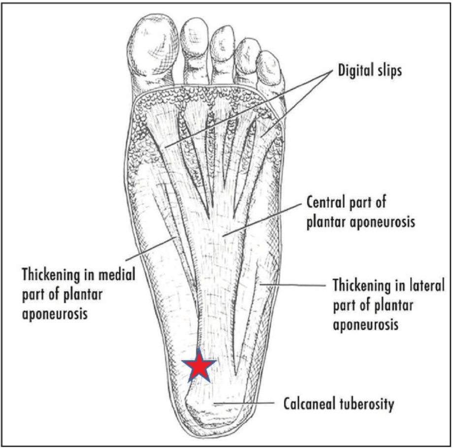 hight resolution of figure 1 plantar fascia diagram the plantar fascia runs from the calcaneal tuberosity to