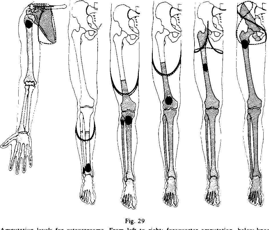Figure 29 from Local recurrence after amputation for