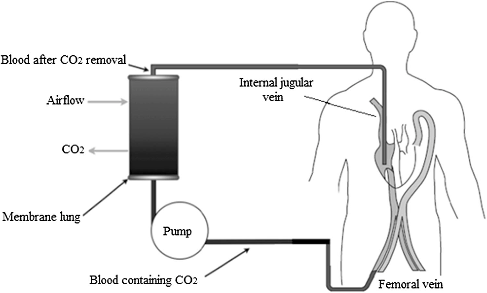 Figure 1 from Extracorporeal carbon dioxide removal