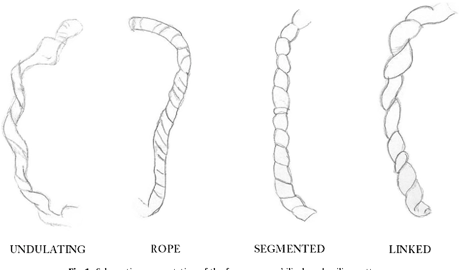 Figure 1 from Gross patterns of umbilical cord coiling