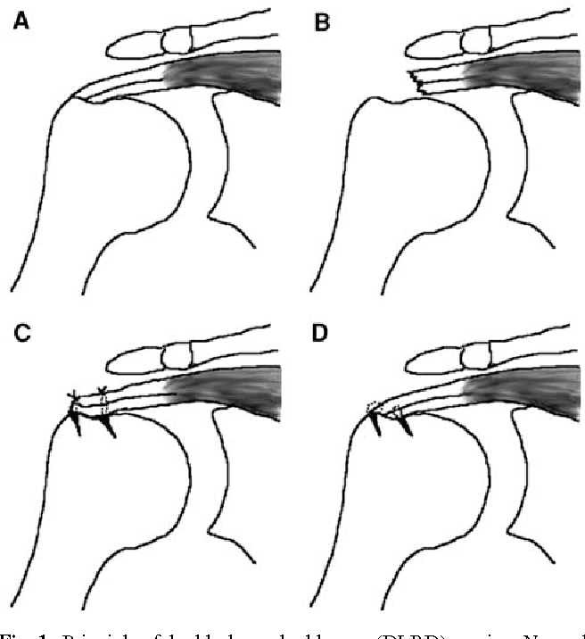 Figure 1 from Knotless anatomic double-layer double-row