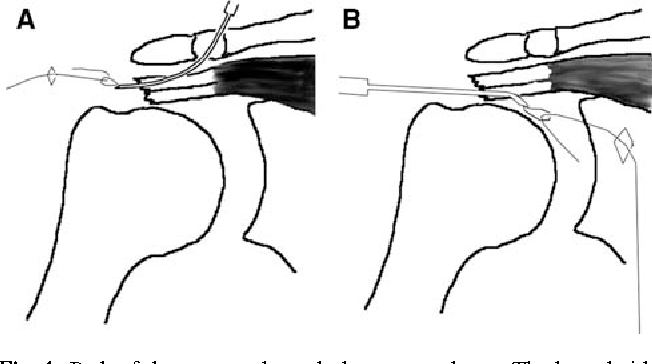 Figure 4 from Knotless anatomic double-layer double-row